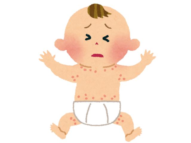 汗疹の赤ちゃん