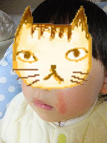 肌荒れの赤ちゃん顔(娘)