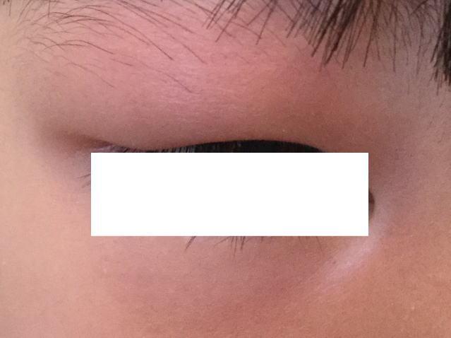 子供が蚊に刺され瞼が腫れあがった写真