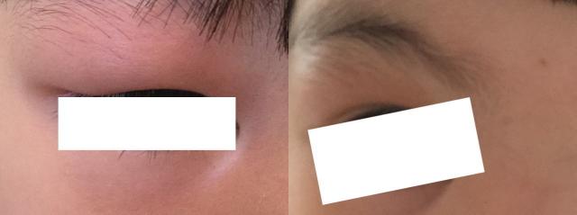 子供の瞼の上が腫れあがった様子と薬で治った様子を比較