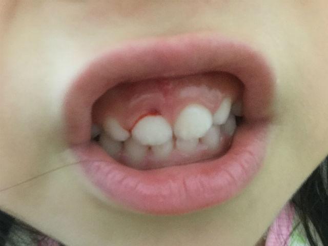 子供が歯と歯茎を強打し内出血している様子(写真)