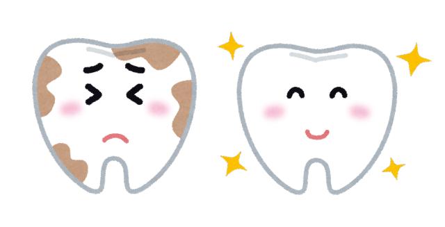 虫歯と綺麗な歯