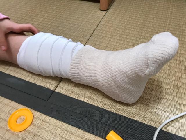 子供が足首を剥離骨折。ギプスをしている様子