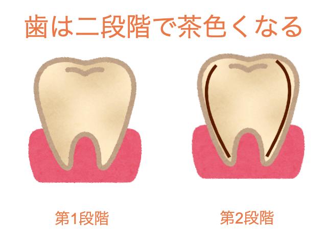 40代になり二段階で歯が変色してきた図